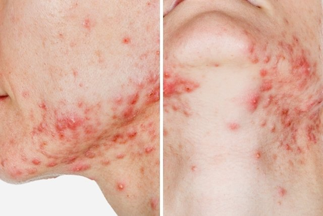 O que causa e como tratar a acne fulminante