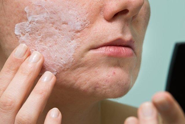 Vitacid Acne Gel: Como usar e Possíveis efeitos colaterais