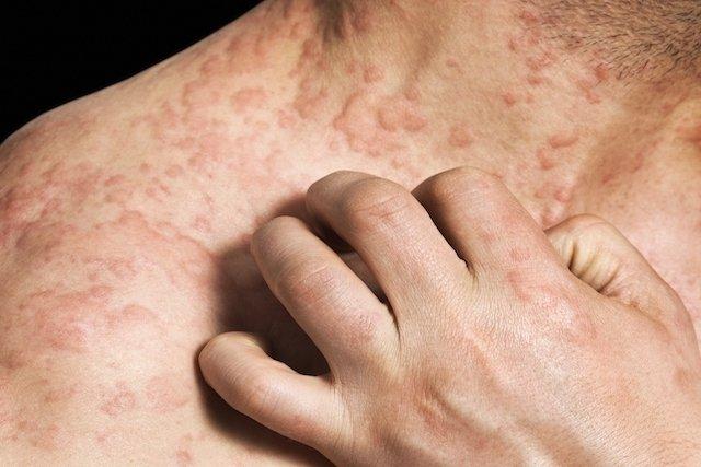 dermatite acneiforme