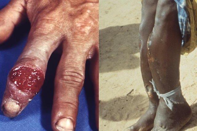 Fotos da sífilis terciária