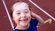 O que é a Síndrome de Down, causas e características