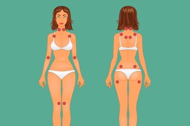 Quais são os pontos dolorosos da Fibromialgia