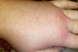 Angioedema na mão