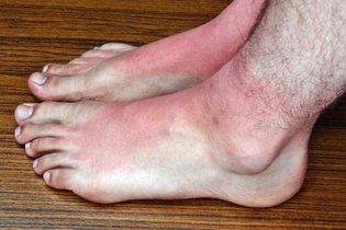 Urticária colinérgica nos pés.