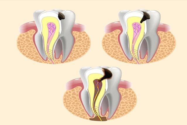 Cárie causando inflamação da polpa do dente
