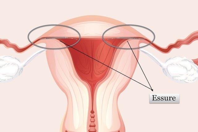 Principais Efeitos Colaterais da contracepção definitiva Essure