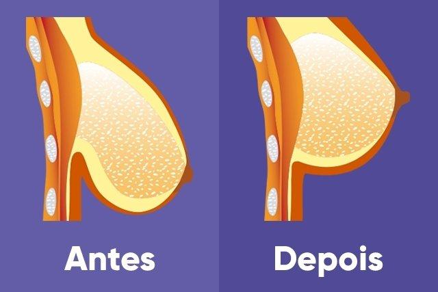 Mastopexia: cirurgia plástica que levanta os seios