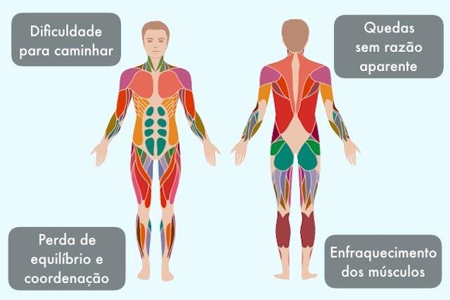 O que é e como tratar a distrofia muscular de Becker