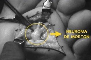 Cirurgia para Neuroma de Morton