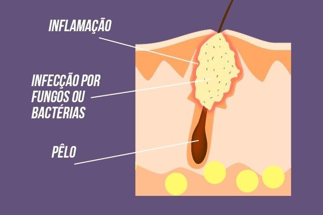 Foliculite: remédios, pomadas e outros tratamentos