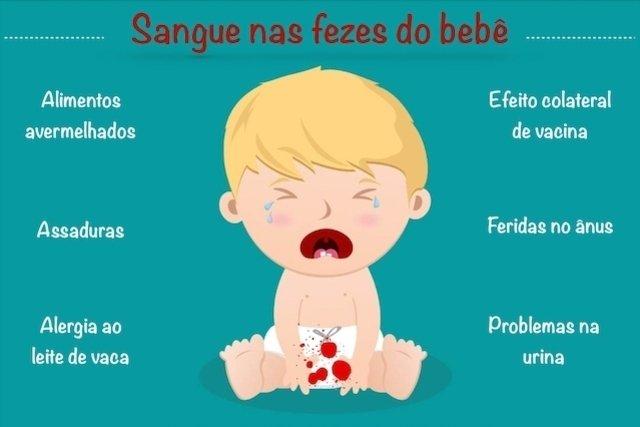 Principais causas de Sangue nas fezes do bebê