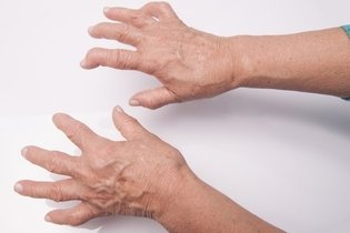 Tudo sobre Artrite
