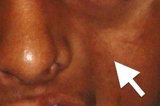 Deformação no rosto vista de frente
