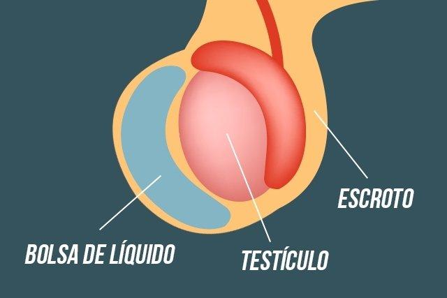 Hidrocele: qué es, causas y tratamiento - Tua Saúde