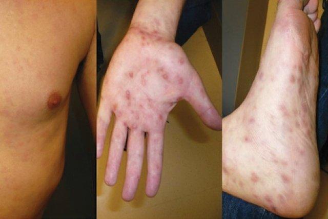 Fotos da sífilis secundária