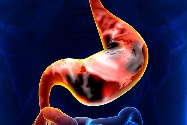 9 sinais que podem indicar câncer de estômago
