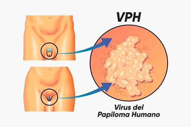 hay cura para virus del papiloma humano