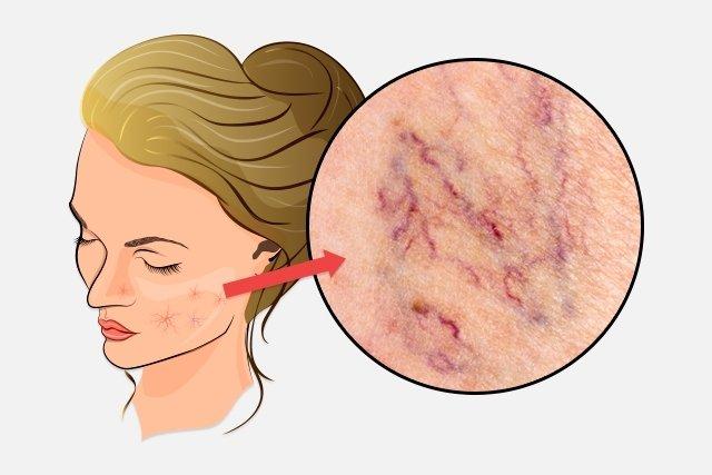 O que é e como tratar a telangiectasia no rosto