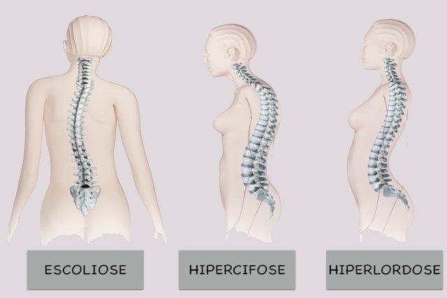 Como identificar e tratar a Hiperlordose na Coluna