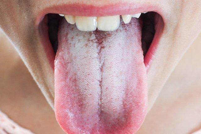 Lengua blanca candidiasis causas