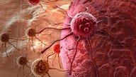 Sintomas de câncer de colo de útero