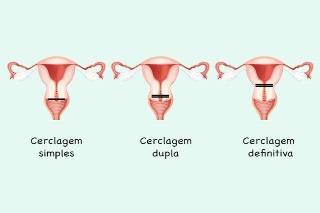 Tipos de cerclagem uterina