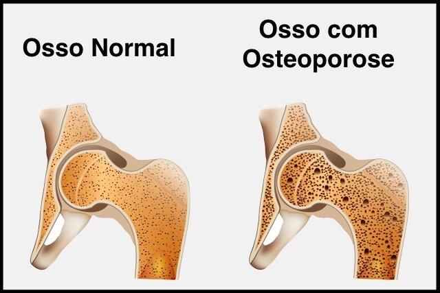 Entenda o que é Osteoporose e suas Causas