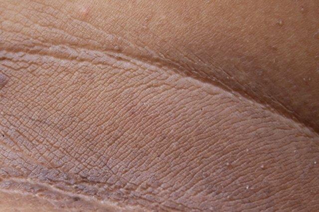 manchas negras en todo el cuerpo