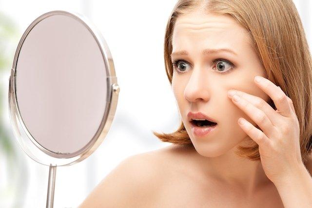Como tratar a acne na gravidez