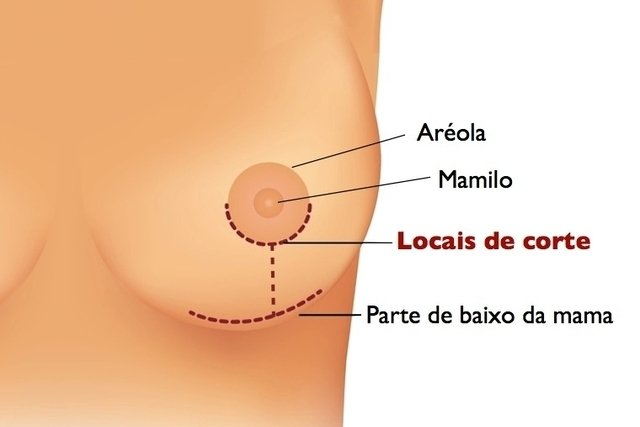 Cirurgia para diminuir os seios e combater a dor nas costas