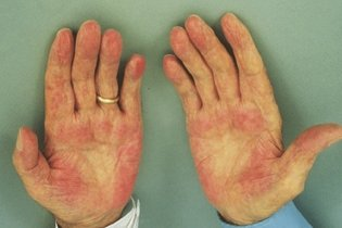 Alergia ao Frio - Como identificar e Conviver