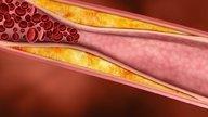 O que é a ateromatose aórtica, sintomas e como tratar