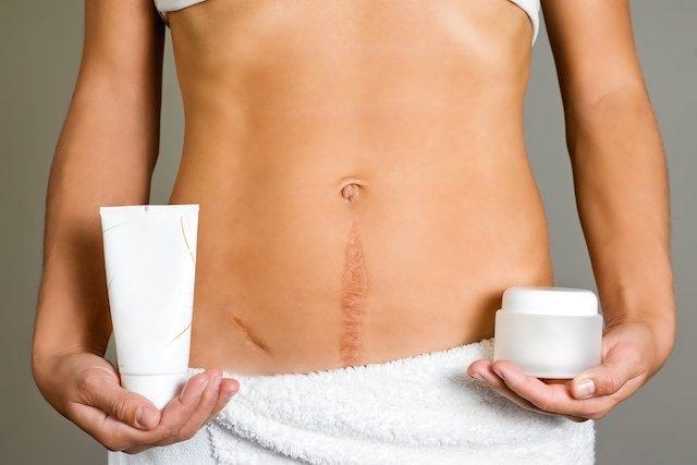 5 Tratamentos para tirar Cicatriz Antiga
