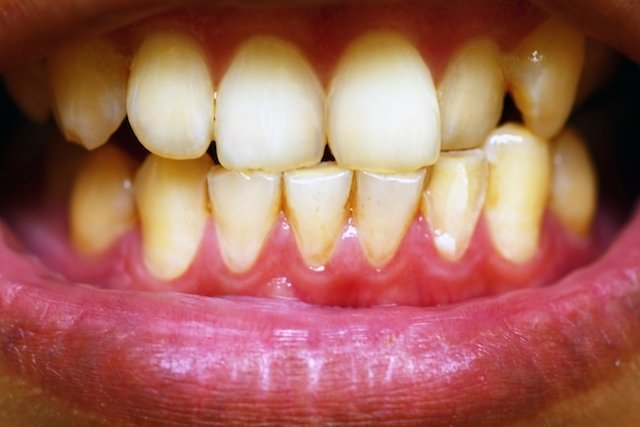 Placa bacteriana nos dentes