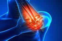 tratament lateral al epicondilitei genunchiului