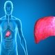 How to treat a fatty liver and its symptoms