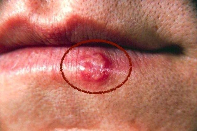 Saiba como se pega e como se proteger da Herpes