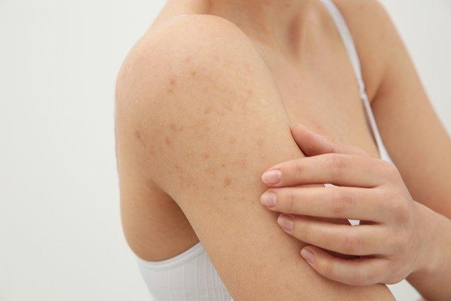 Qué puede causar ronchas o granos en el brazo y qué hacer