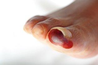 Como tratar a bolha no pé para curar mais rápido
