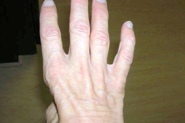 Atrofia muscular da mão