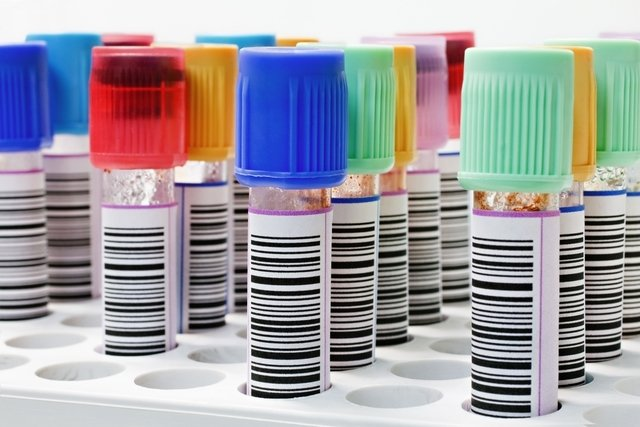 Como entender o exame de sangue