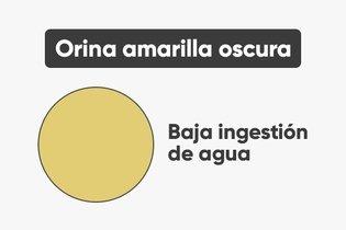 8 Enfermedades que pueden alterar el color de la orina