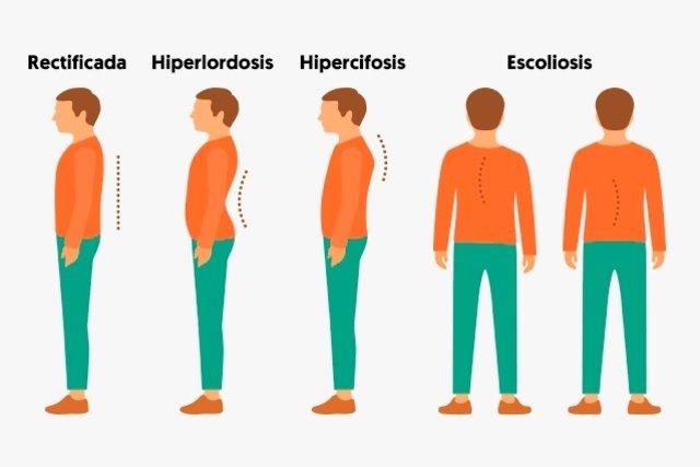 Fisioterapeuta indica algunos ejercicios para mejorar la postura ... 070119826d6c