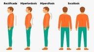 ¿Cómo mejorar la postura?