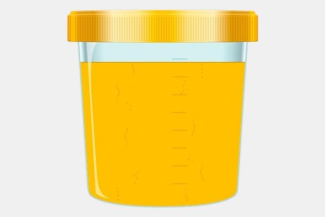 8 Doenças que podem alterar a cor da urina