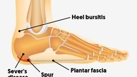 7 causes of heel pain and what to do in each case