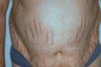 Acúmulo de gordura no abdômen