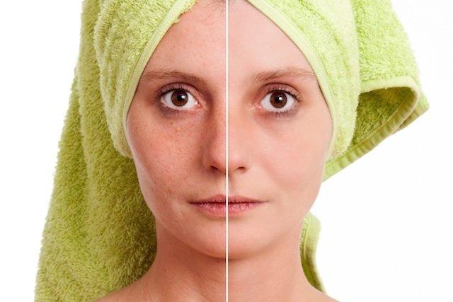 Antes e depois do tratamento com ácido retinóico