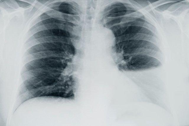 Sintomas de água no pulmão