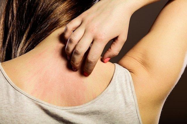 Alergia a níquel: alimentos e utensílios proibidos para evitar crises